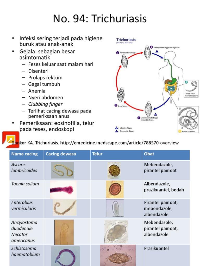 enterobius vermicularis treatment medscape familial cancer ppt