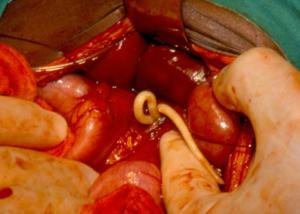 enterobius vermicularis kinder ciuperci pane