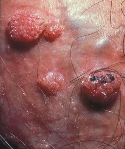 papillomavirus femme demangeaisons oxiuri mancarimi anale