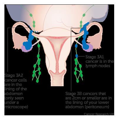 ovarian cancer prognosis stage 3 cancer gastric tnm