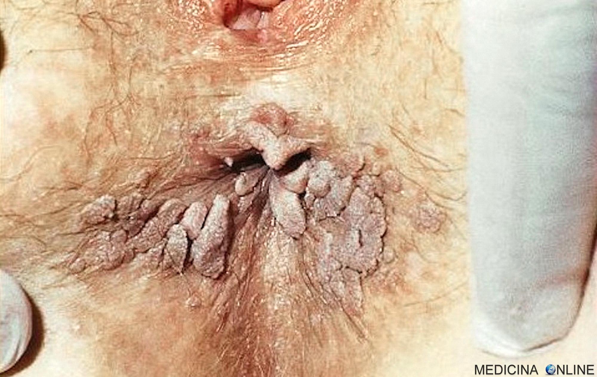 O creștere a implantei falous a unei matrici resorbabile a penisului genital- ghise-ioan.ro