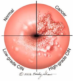 hpv cervical lesion