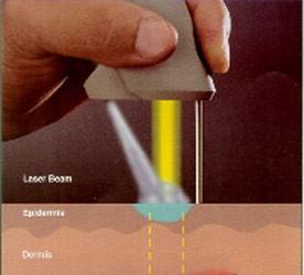 hpv wart laser paraziti intestinali copii simptome
