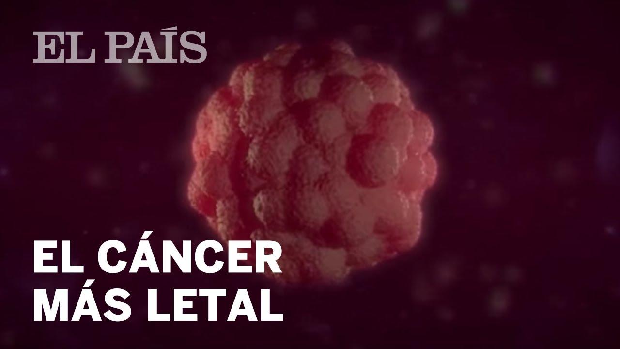 que cancer es mas letal