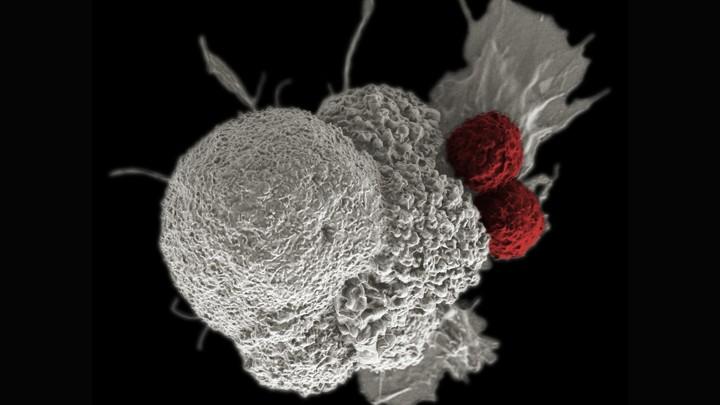 cancer bucal tesis