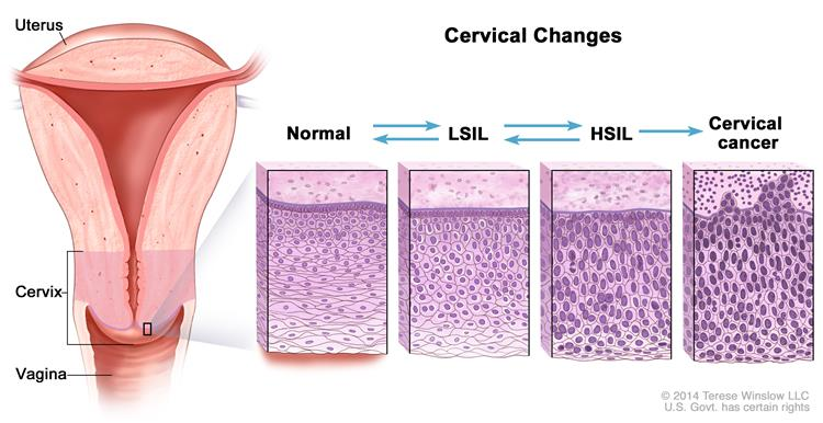 papilloma cervical intraepithelial neoplasia
