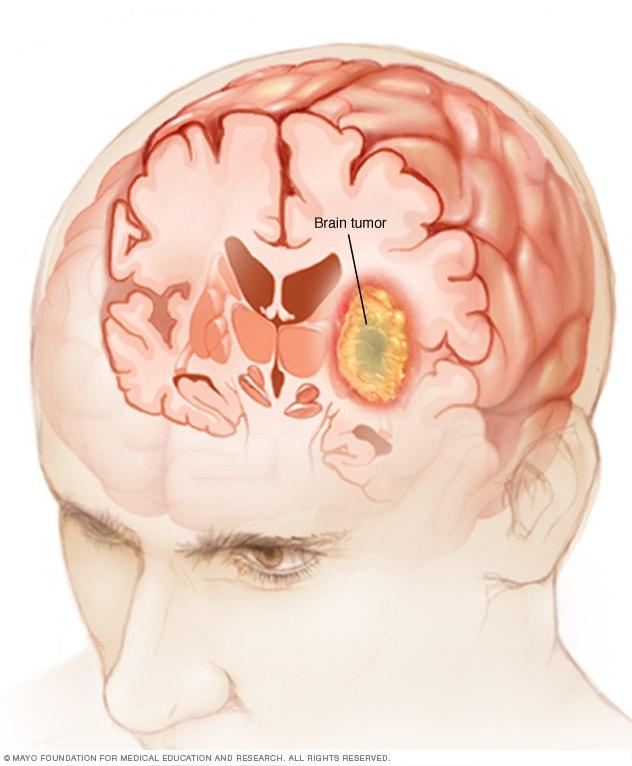 cancer cerebral gbm