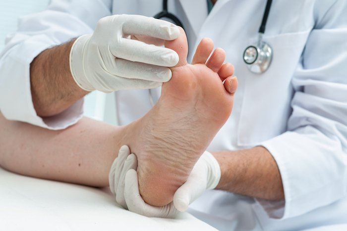 plantar wart on foot dermatologist or podiatrist