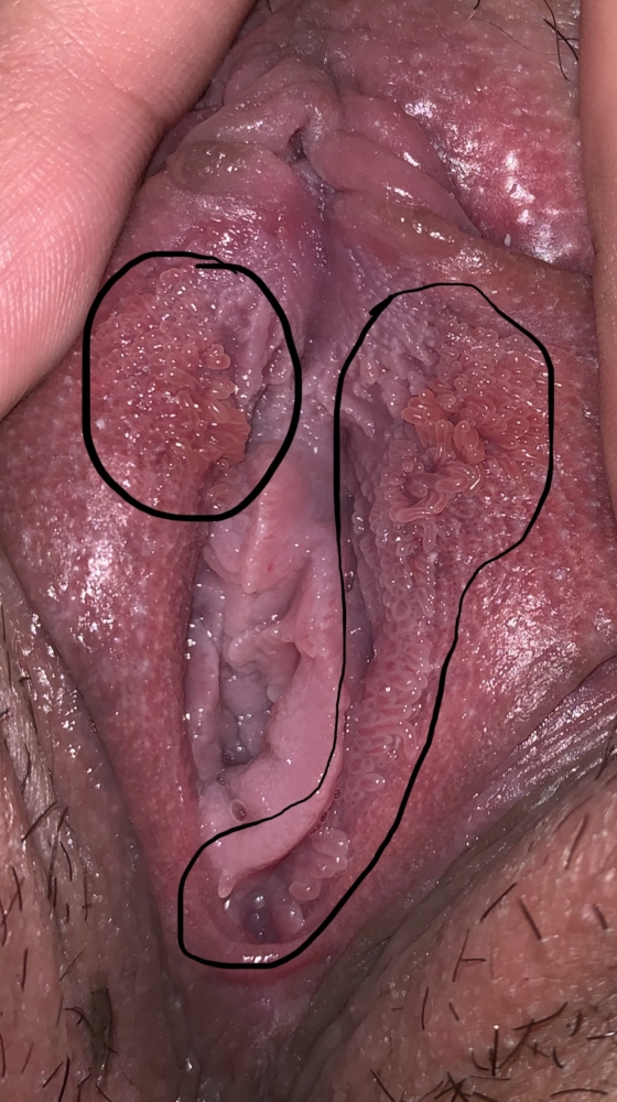 does vestibular papillomatosis come and go hpv head and neck cancer vaccine