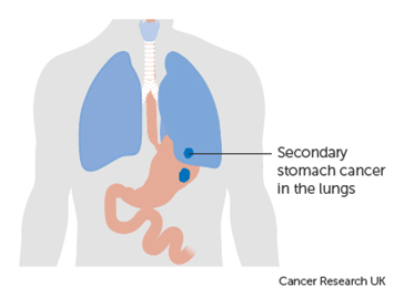 cancer gastric inoperabil