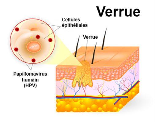 papillomavirus mst traitement