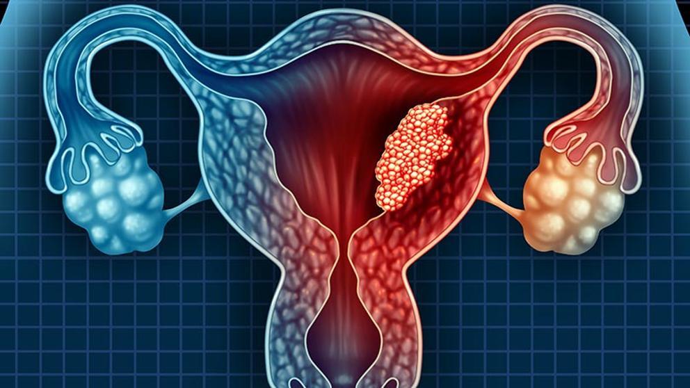 cancer endometrial definicion test papillomavirus nhs