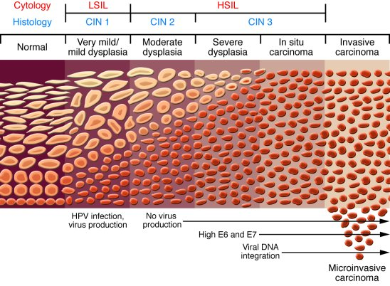 hpv virus and bladder cancer