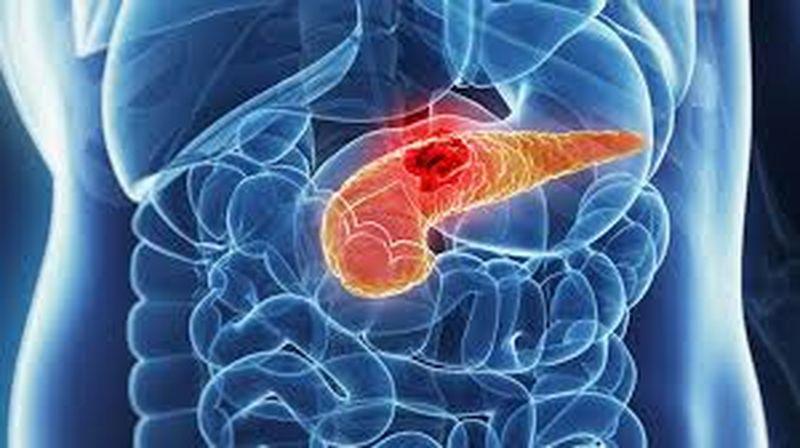 Durere spate, cancer de pancreas. Simptome înșelătoare. Medic: Mulți o ignoră   DCNews