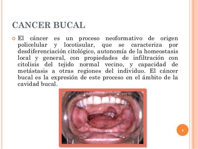 cancer bucal concepto