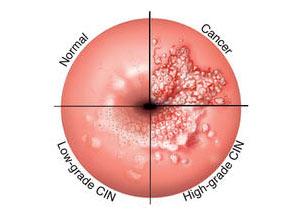 cancerul mamar hpv verrugas contagio