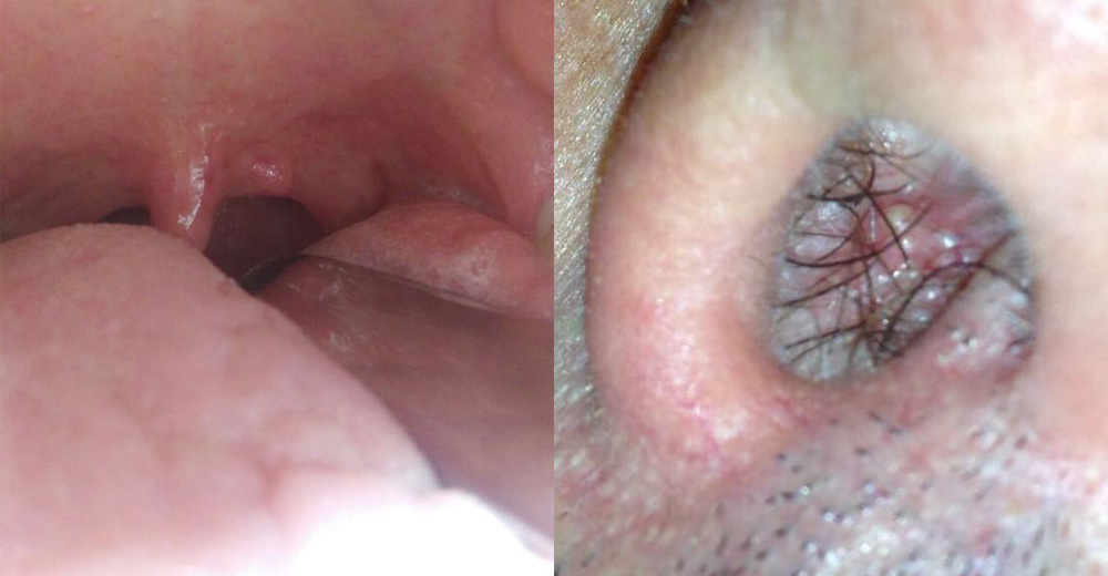 virus papilloma gola papillary lesion mouth