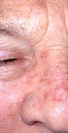 Cancerul de piele, o boala care se vindeca daca e depistata la timp. Cum sa ne autoexaminam