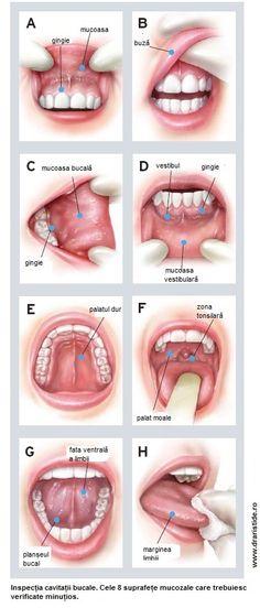 cancerul bucal simptome papiloma en el interior del ano