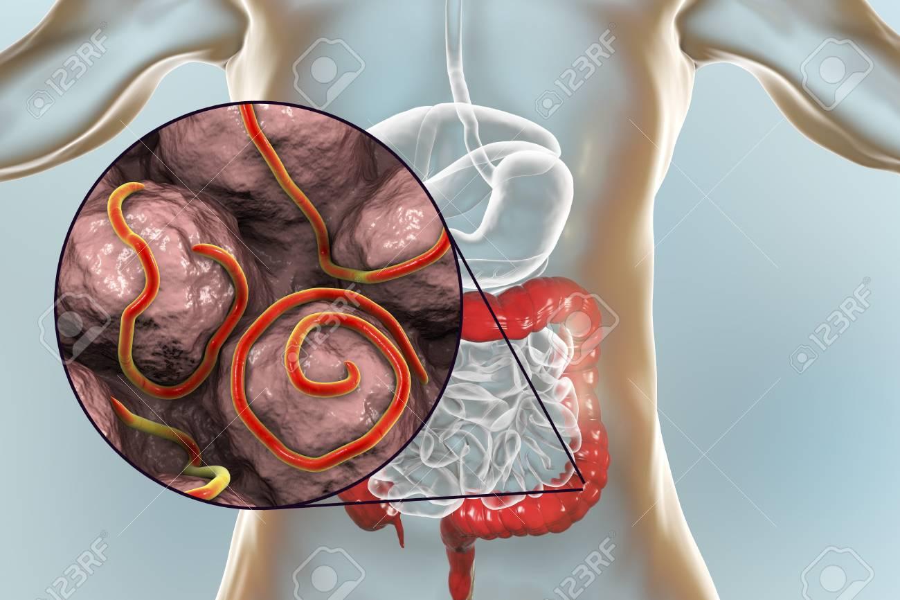 enterobiasis causes