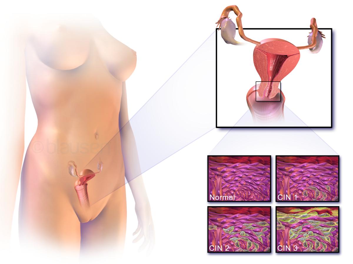 hpv uvula papilloma rectal cancer under 50