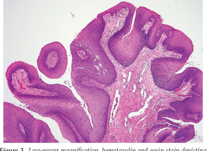 oncocytic papilloma sinus