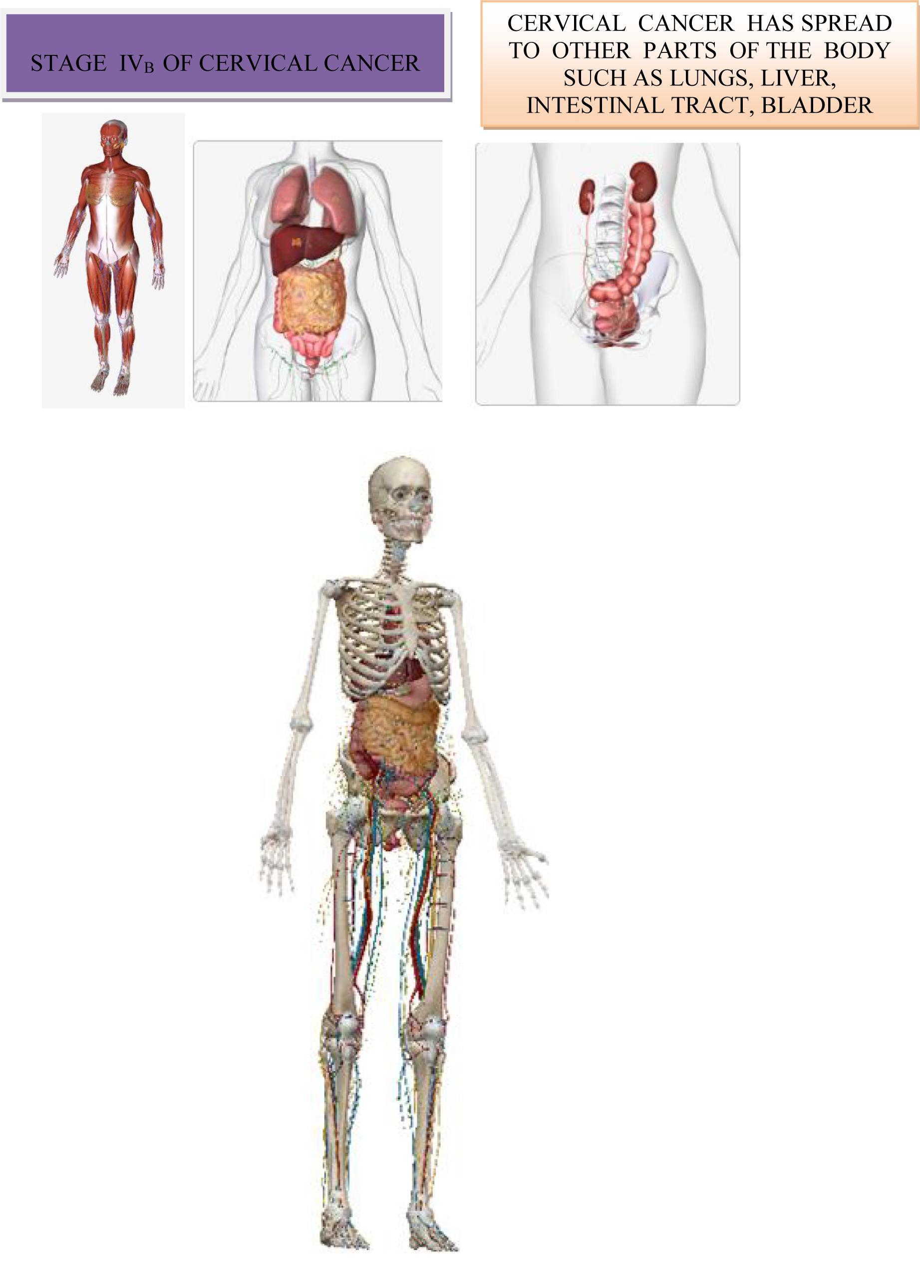 Cancerul cervical - simptome, diagnostic si tratament