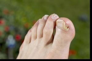ciuperci ale piciorului oxiuri cand alaptezi