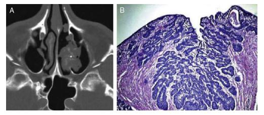 papiloma invertido benigno