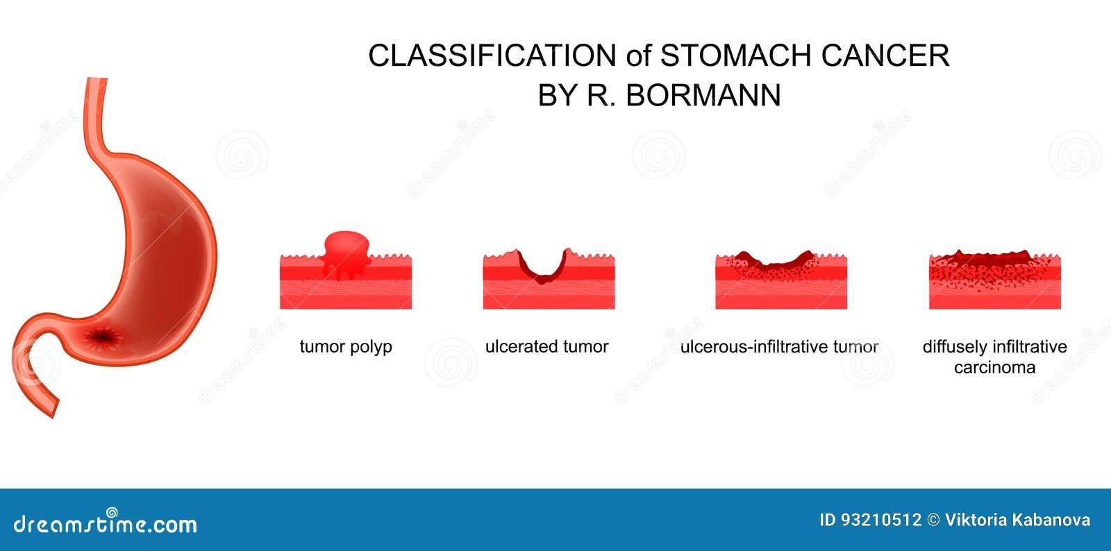 Tipuri de cancer de adenoame gastrice