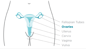 ovarian cancer urine test