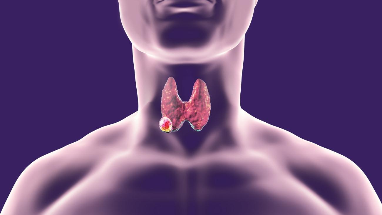 virus del papiloma humano hombres