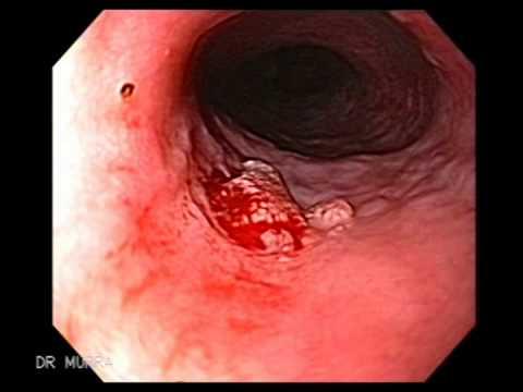 esophageal papilloma pathology outlines caracteristica del papiloma humano