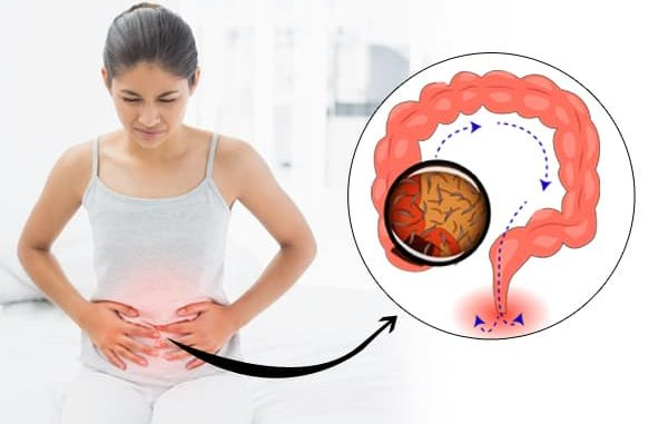 paraziti kod dece simptomi que es papiloma humana en mujeres