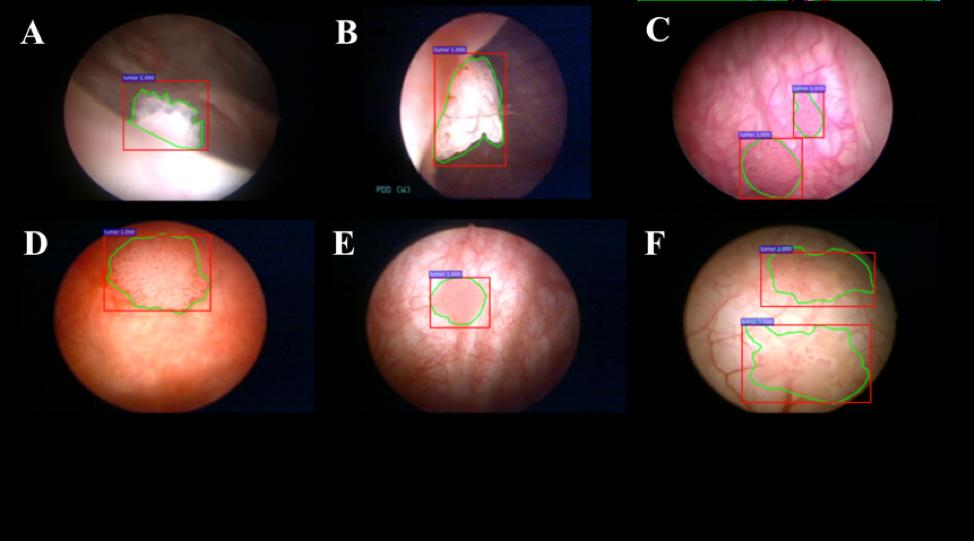 papillary lesion bladder can hpv cause benign tumors