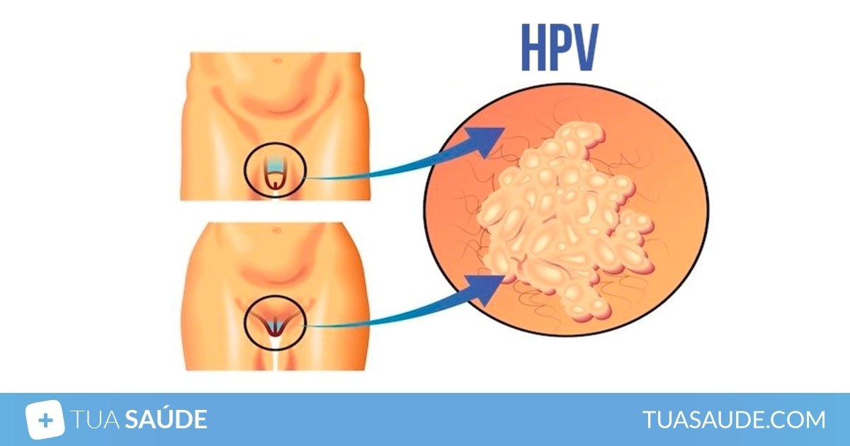 ce este papillomavirus uman