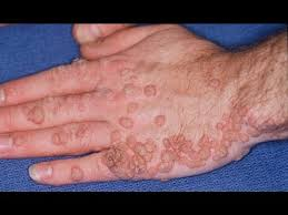 hpv human papilloma cancer causing hpv