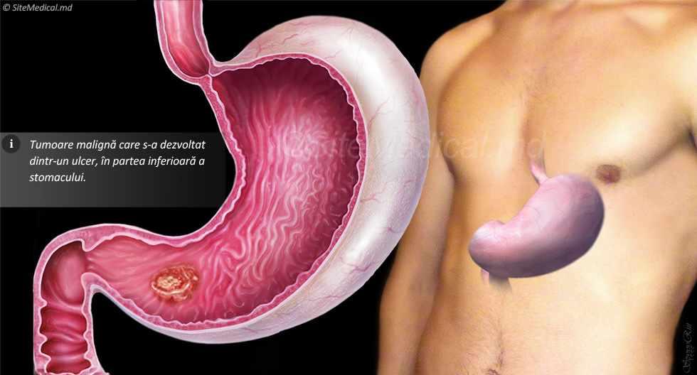 Cancer gastric (de stomac) - Tot ce trebuie să ştii | Cancer