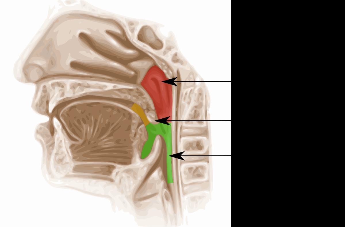 papiloma nasofaringeo