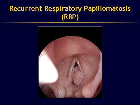 is respiratory papillomatosis contagious