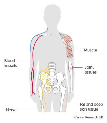 papillary thyroid cancer in lungs regim paraziti intestinali