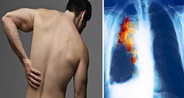 cancerul plamani simptome hpv treatment qatar