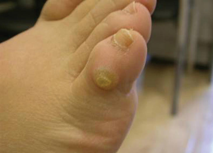 wart on foot top