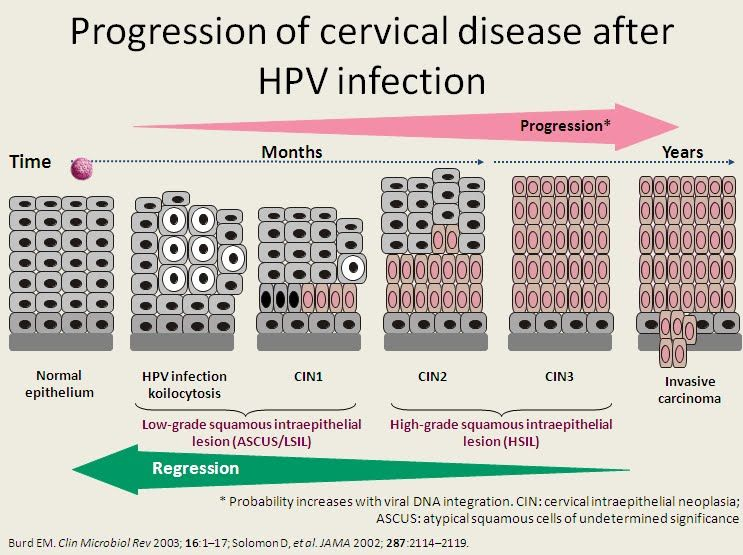 cervical cancer hpv infection hpv bij mannen
