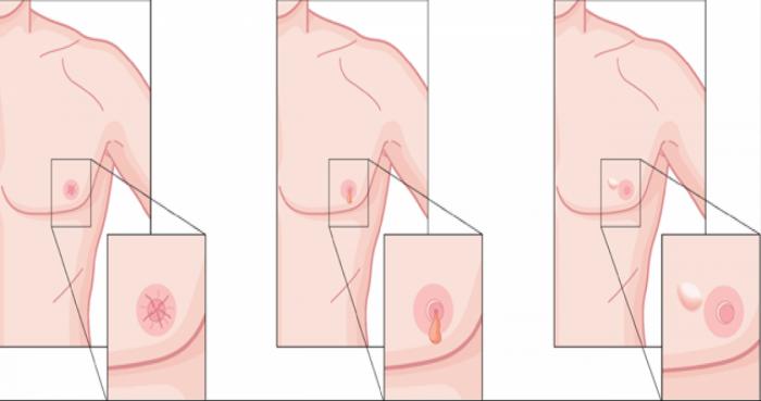 Cancerul de sân la bărbați – cum îl recunoști?