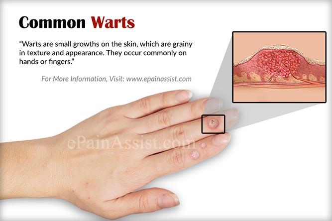 warts treatment hands definition de papillomavirus humains