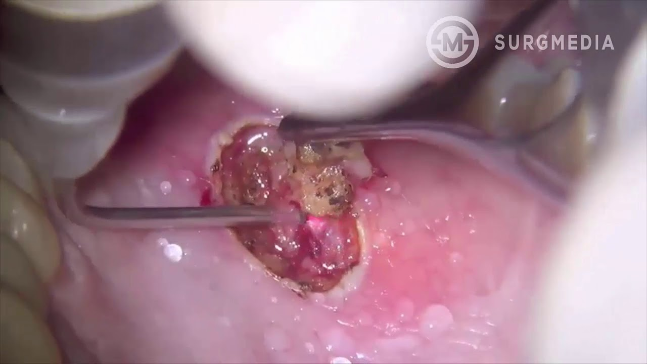 papilloma be removed papillomatosis in cows