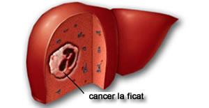 cancerul la ficat