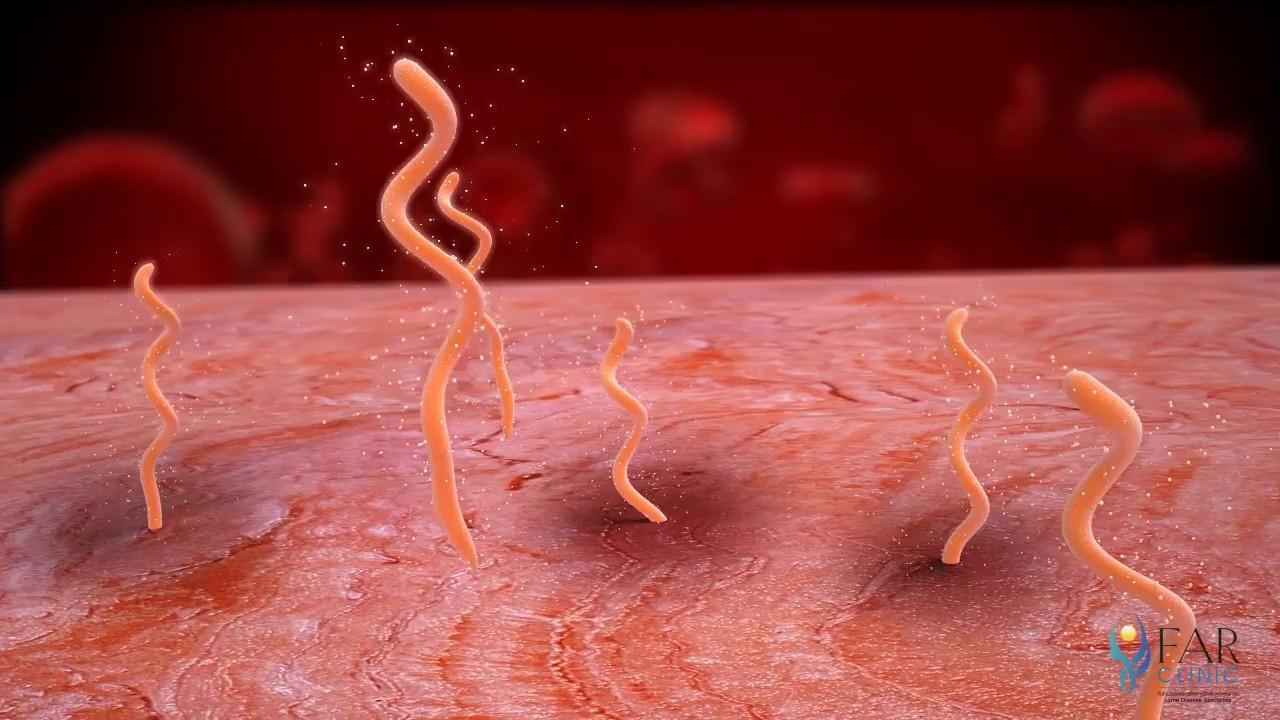 10 indicii ca organismul tau gazduieste paraziti