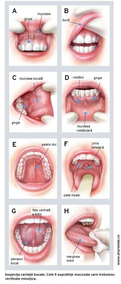 cancerul planseului bucal